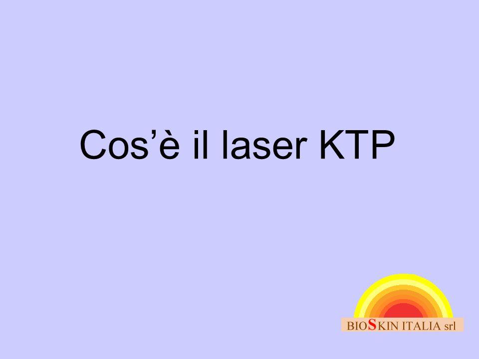 Cos'è il laser KTP