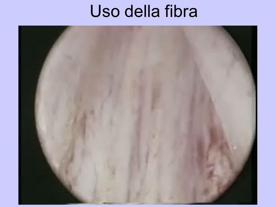 Uso della fibra