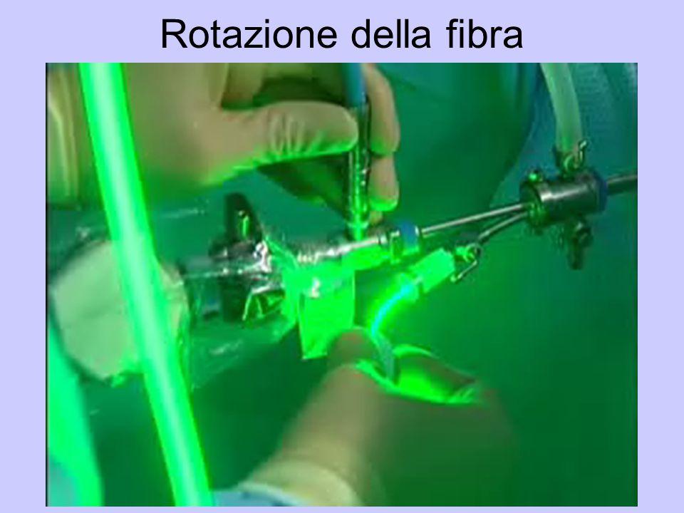 Rotazione della fibra