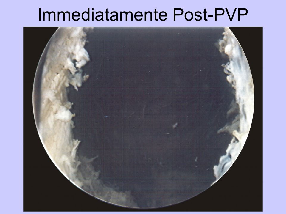 Immediatamente Post-PVP