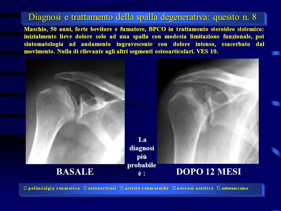 BASALEDOPO 12 MESI Maschio, 50 anni, forte bevitore e fumatore, BPCO in trattamento steroideo sistemico: inizialmente lieve dolore solo ad una spalla