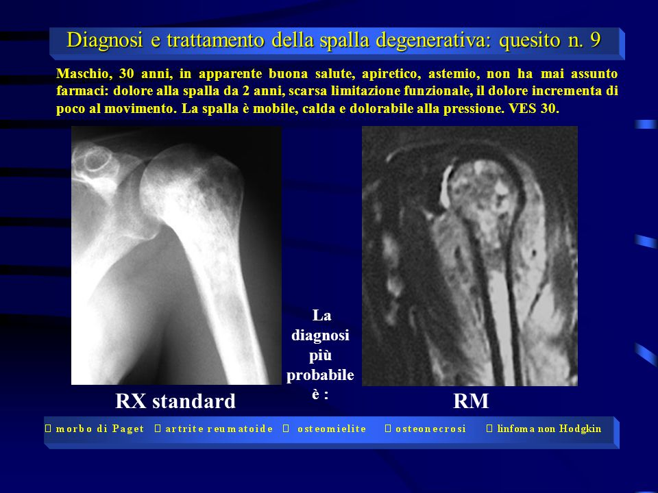 RX standardRM Maschio, 30 anni, in apparente buona salute, apiretico, astemio, non ha mai assunto farmaci: dolore alla spalla da 2 anni, scarsa limitazione funzionale, il dolore incrementa di poco al movimento.