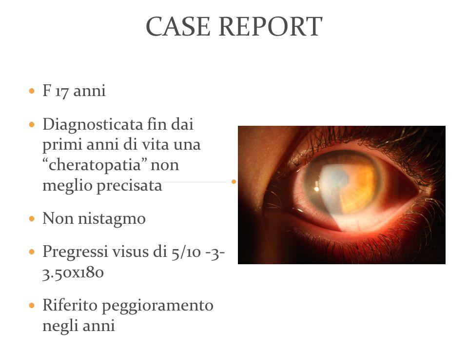 CASE REPORT F 17 anni Diagnosticata fin dai primi anni di vita una cheratopatia non meglio precisata Non nistagmo Pregressi visus di 5/10 -3- 3.50x180 Riferito peggioramento negli anni