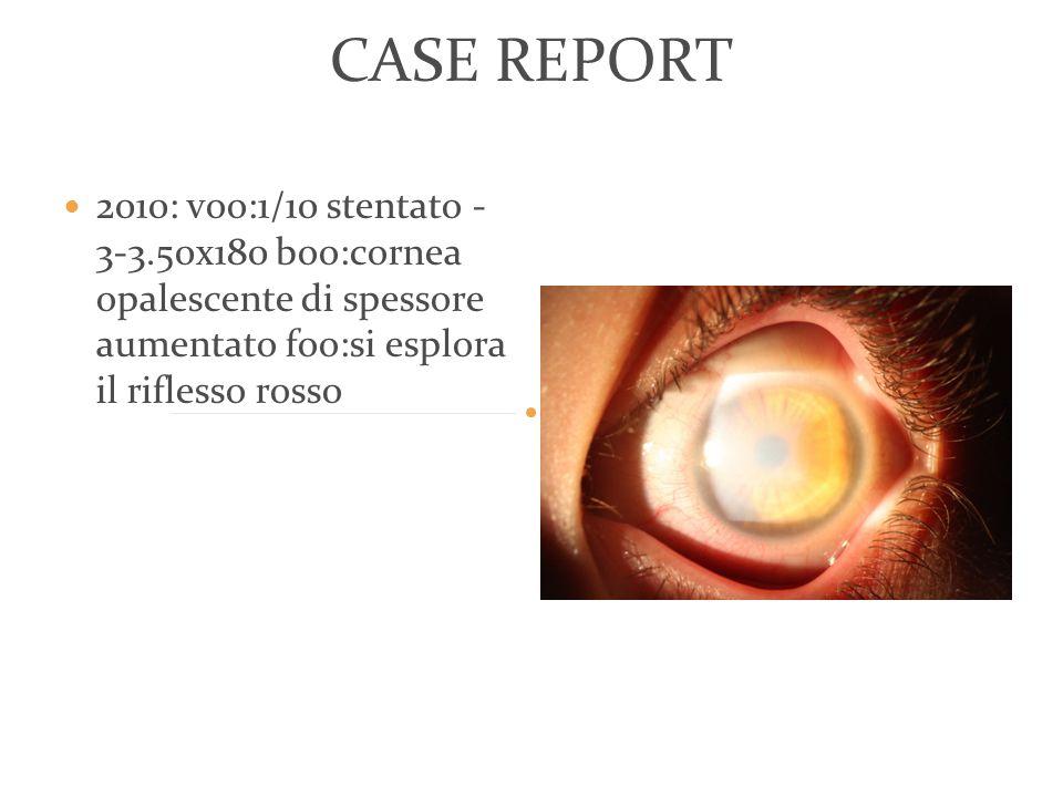 CASE REPORT 2010: voo:1/10 stentato - 3-3.50x180 boo:cornea opalescente di spessore aumentato foo:si esplora il riflesso rosso