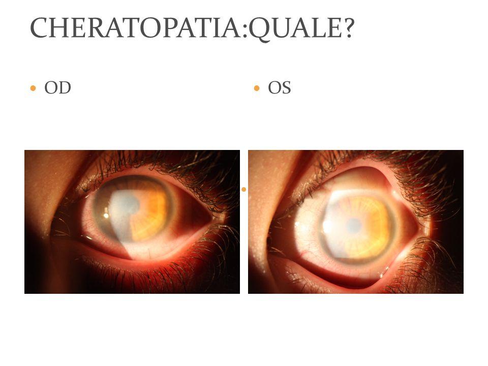 Vod:5/10 con lac Tod:16 mmhg Bod:cornea notevolmente rischiarata, lembo ben posizionato Astigmatismo corneale tornato ai livelli pre operatori Spessore circa 600 micron SITUAZIONE ATTUALE