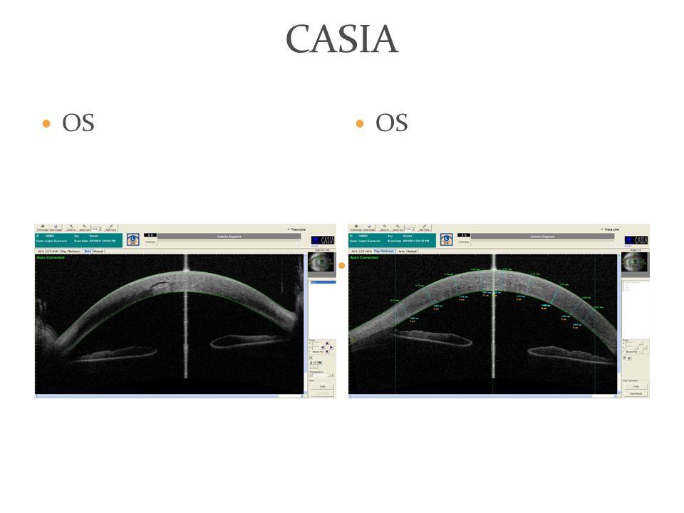 CASIA OS