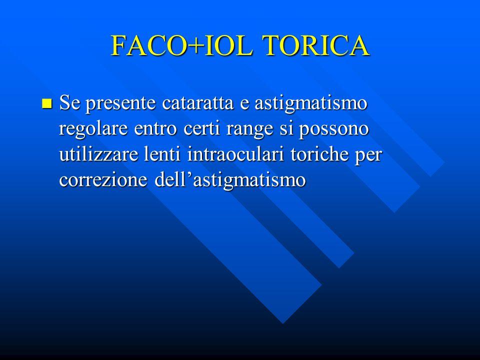 FACO+IOL TORICA Se presente cataratta e astigmatismo regolare entro certi range si possono utilizzare lenti intraoculari toriche per correzione dell'a