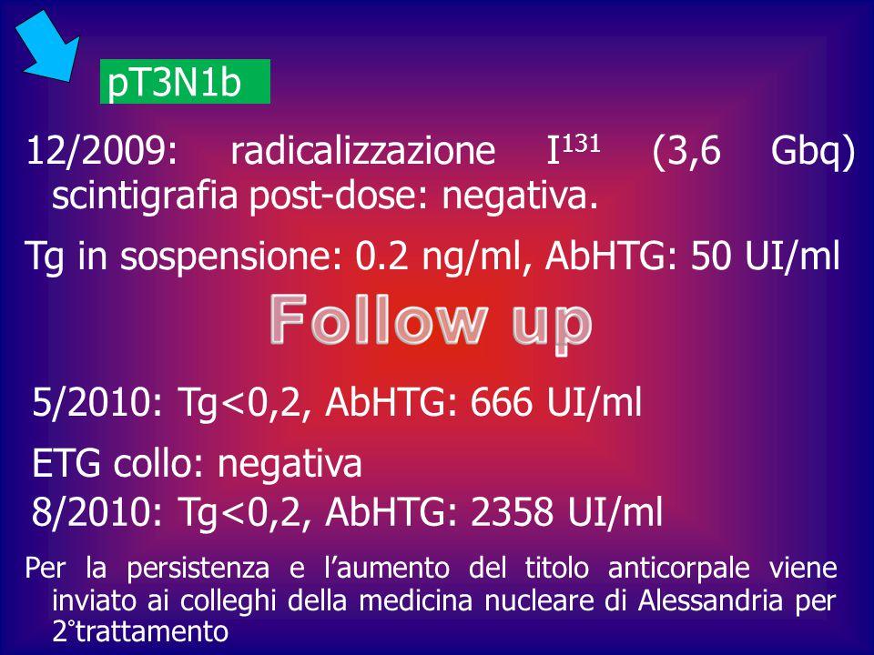 pT3N1b 12/2009: radicalizzazione I 131 (3,6 Gbq) scintigrafia post-dose: negativa. Tg in sospensione: 0.2 ng/ml, AbHTG: 50 UI/ml 5/2010: Tg<0,2, AbHTG