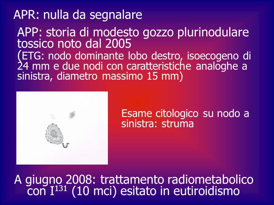 ETG di controllo dopo un anno dalla terapia: riscontro di due formazioni LC a destra (III° livello), ipo-isoecogene, tondeggianti, vascolarizzate a ECD FNAB (7/2009) : presenza di cellule di carcinoma con aspetti papillari ( possibile origine tiroidea o polmonare) Exeresi (10/2009) : tiroidectomia totale + dissezione ghiandolare selettiva dei comparti centrale e laterale destro