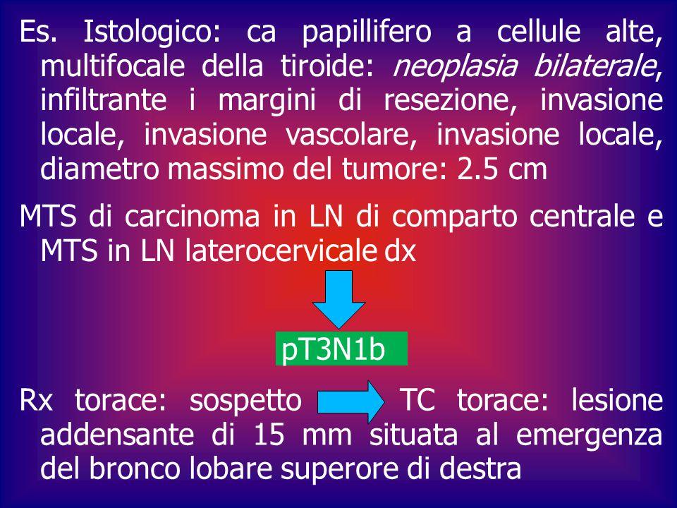 Es. Istologico: ca papillifero a cellule alte, multifocale della tiroide: neoplasia bilaterale, infiltrante i margini di resezione, invasione locale,