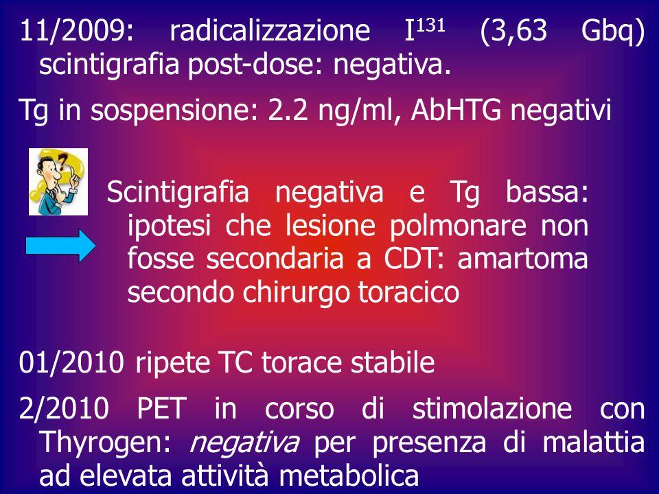 05/2010 ad Alessandria viene effettuata scintigrafia in corso di stimolazione con Thyrogen: negativa Tg dopo stimolo con Thyrogen: 0,2 ng/ml 10/2010: exeresi di lesione polmonare: esame istologico: MTS di Ca papillifero della tiroide