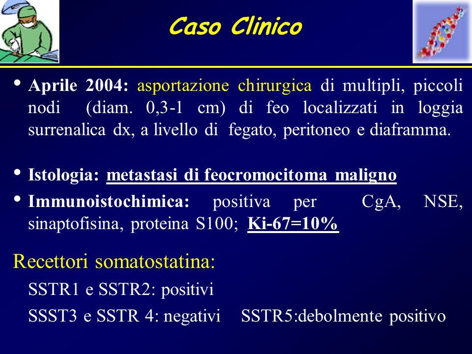 Caso Clinico Aprile 2004: asportazione chirurgica di multipli, piccoli nodi (diam. 0,3-1 cm) di feo localizzati in loggia surrenalica dx, a livello di