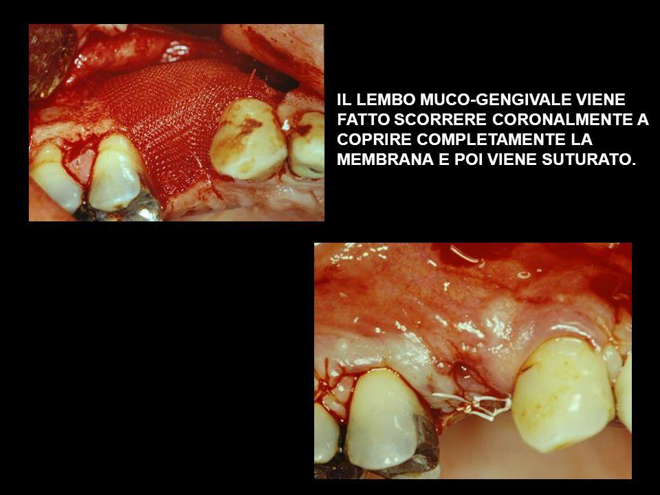 IL LEMBO MUCO-GENGIVALE VIENE FATTO SCORRERE CORONALMENTE A COPRIRE COMPLETAMENTE LA MEMBRANA E POI VIENE SUTURATO.