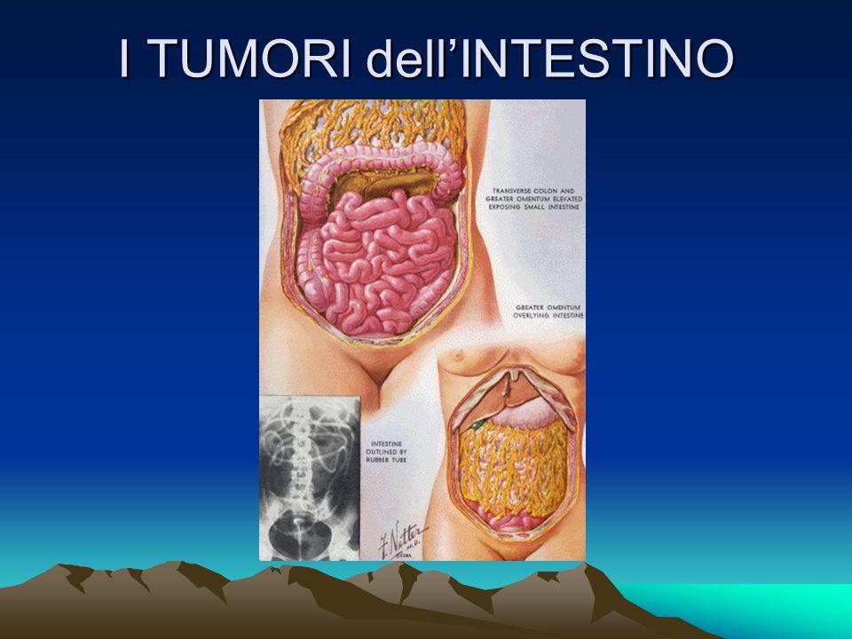 Il Cancro Modalità di disseminazione Infiltrazione tessuti circostanti Invasione dei vasi sanguigni e linfatici Disseminazione a distanza