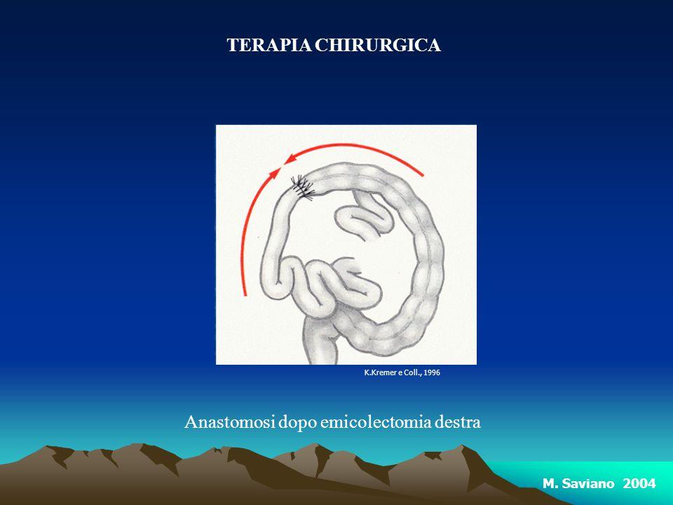 TERAPIA CHIRURGICA Anastomosi dopo emicolectomia destra K.Kremer e Coll., 1996 M. Saviano 2004