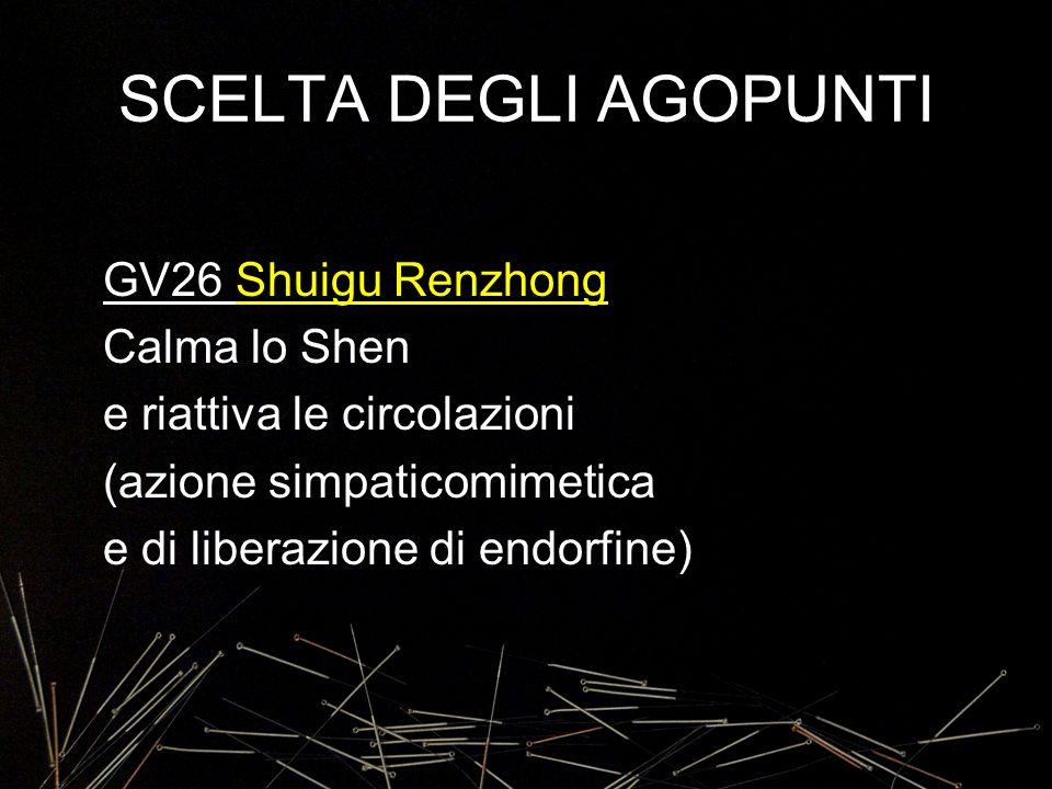 SCELTA DEGLI AGOPUNTI GV26 Shuigu Renzhong Calma lo Shen e riattiva le circolazioni (azione simpaticomimetica e di liberazione di endorfine)