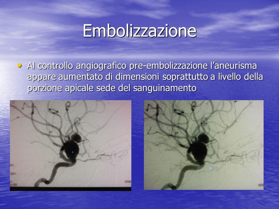 Embolizzazione • Al controllo angiografico pre-embolizzazione l'aneurisma appare aumentato di dimensioni soprattutto a livello della porzione apicale