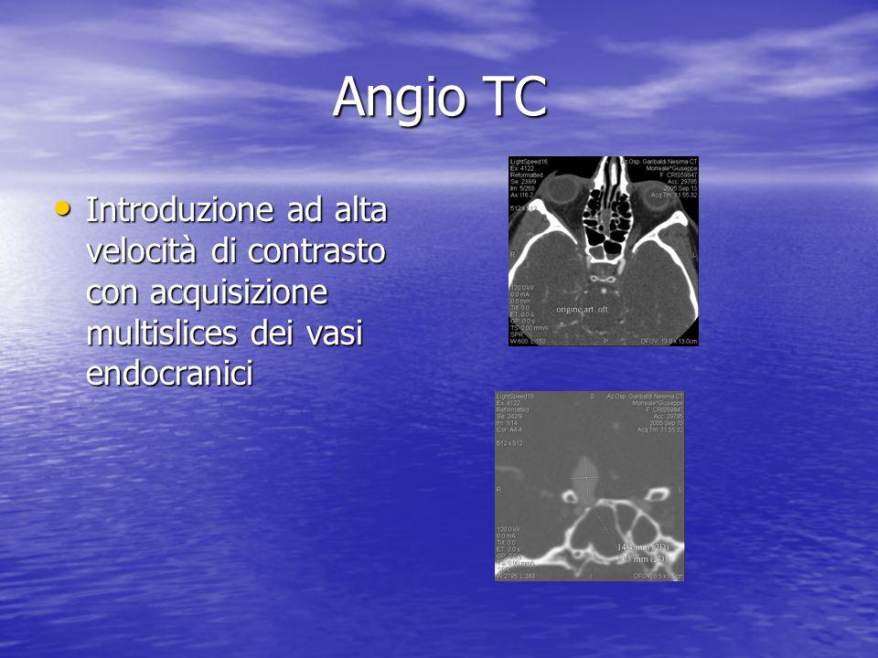 Angio TC • Introduzione ad alta velocità di contrasto con acquisizione multislices dei vasi endocranici