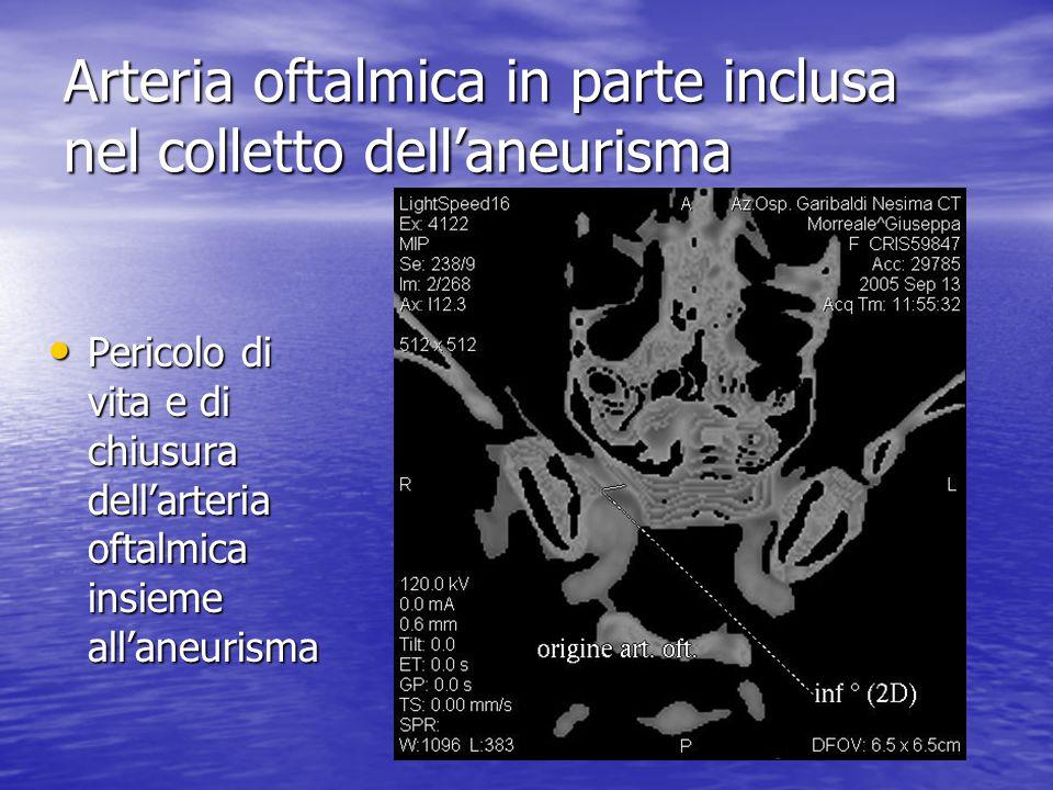 Arteria oftalmica in parte inclusa nel colletto dell'aneurisma • Pericolo di vita e di chiusura dell'arteria oftalmica insieme all'aneurisma