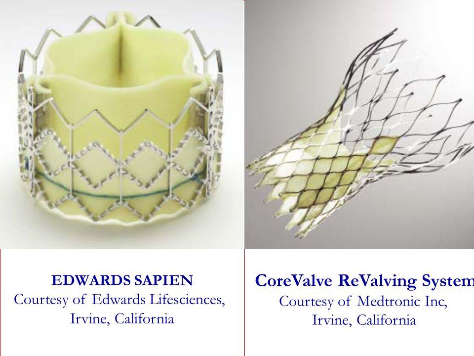 Il 31,8% dei pazienti non viene sottoposto ad intervento, nonostante classe NYHA III/IV EDWARDS SAPIEN Courtesy of Edwards Lifesciences, Irvine, Calif