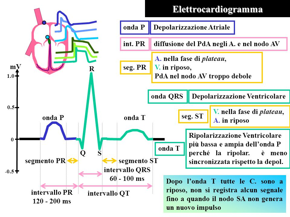 Elettrocardiogramma onda Ponda T Q S R segmento PRsegmento ST intervallo QRS 60 - 100 ms intervallo QT intervallo PR 120 - 200 ms mV 1.0 0.5 -0.5 0 onda PDepolarizzazione Atrialeonda QRSDepolarizzazione Ventricolare onda T Ripolarizzazione Ventricolare più bassa e ampia dell'onda P perché la ripolar.
