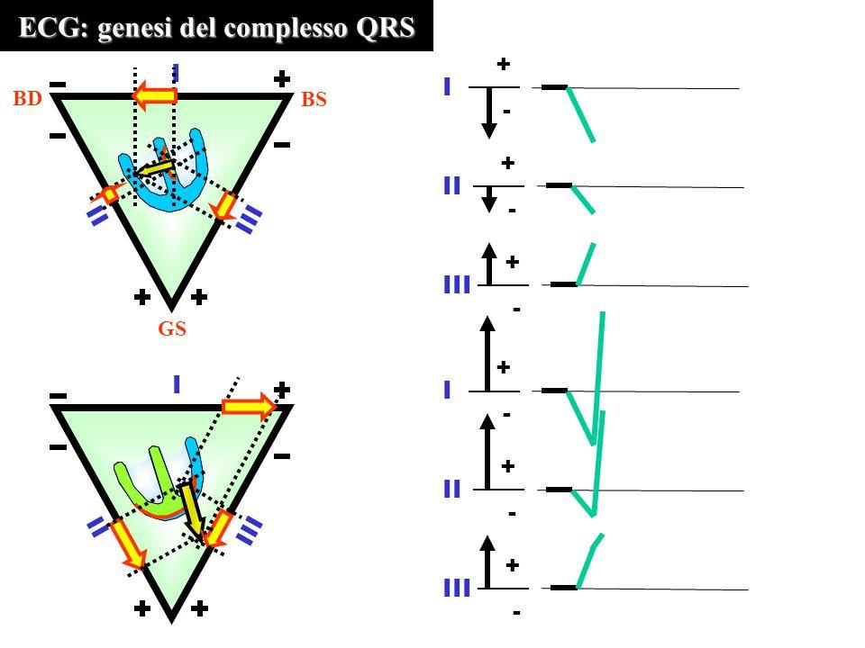 ECG: genesi del complesso QRS III II I BD BS GS III II I + - I + - III + - + - I + - II III + -