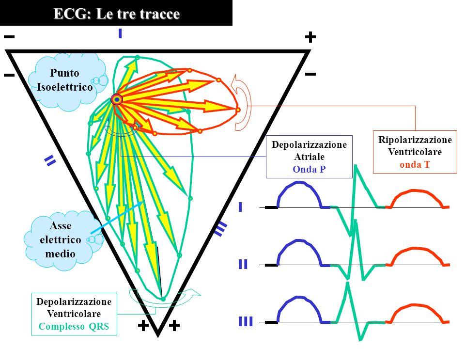 Punto Isoelettrico ECG: Le tre tracce III II I I III Ripolarizzazione Ventricolare onda T Depolarizzazione Atriale Onda P Depolarizzazione Ventricolare Complesso QRS Asse elettrico medio