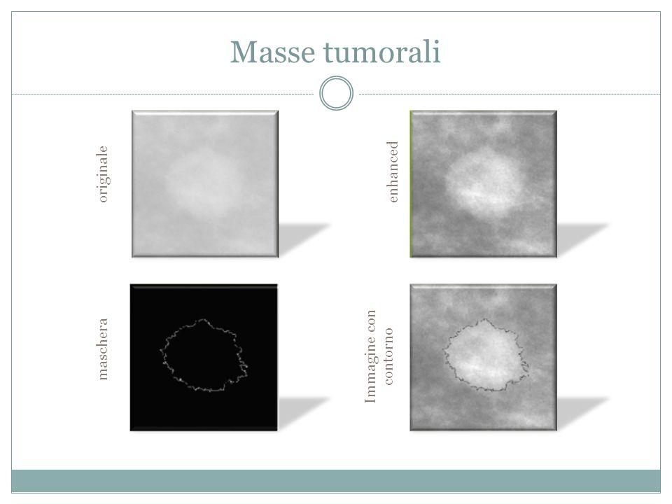 Masse tumorali originale maschera enhanced Immagine con contorno