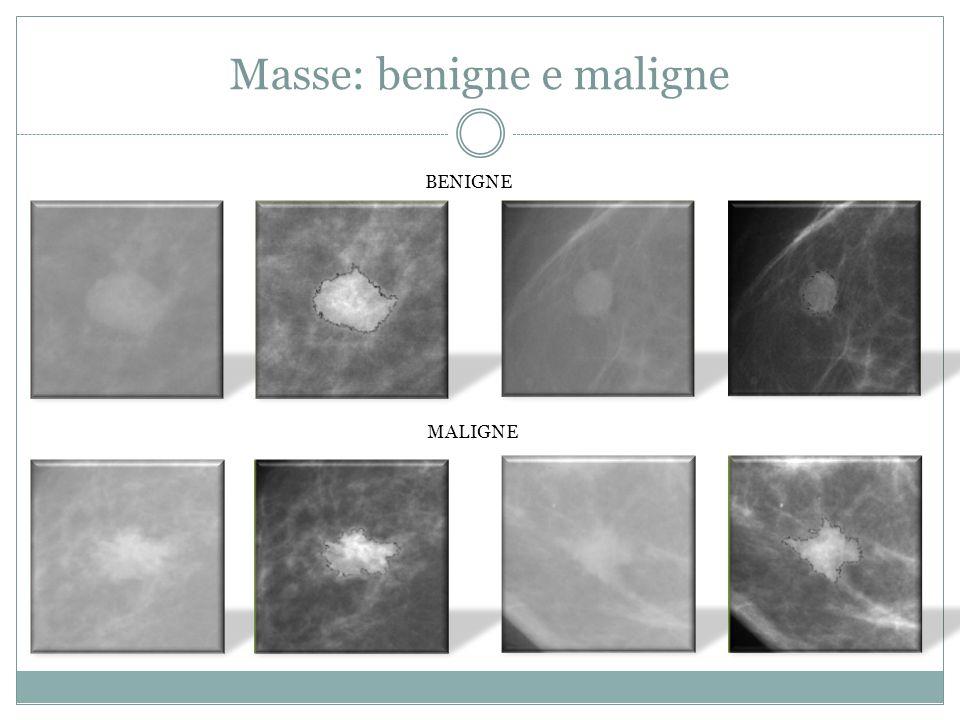 Masse: benigne e maligne BENIGNE MALIGNE