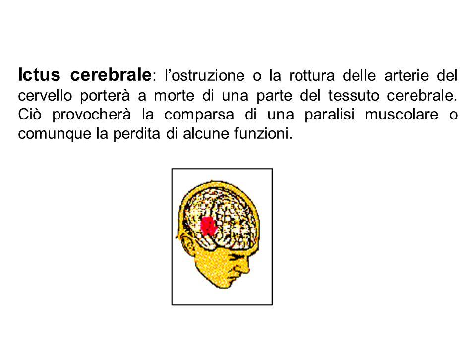 Ictus cerebrale : l'ostruzione o la rottura delle arterie del cervello porterà a morte di una parte del tessuto cerebrale.