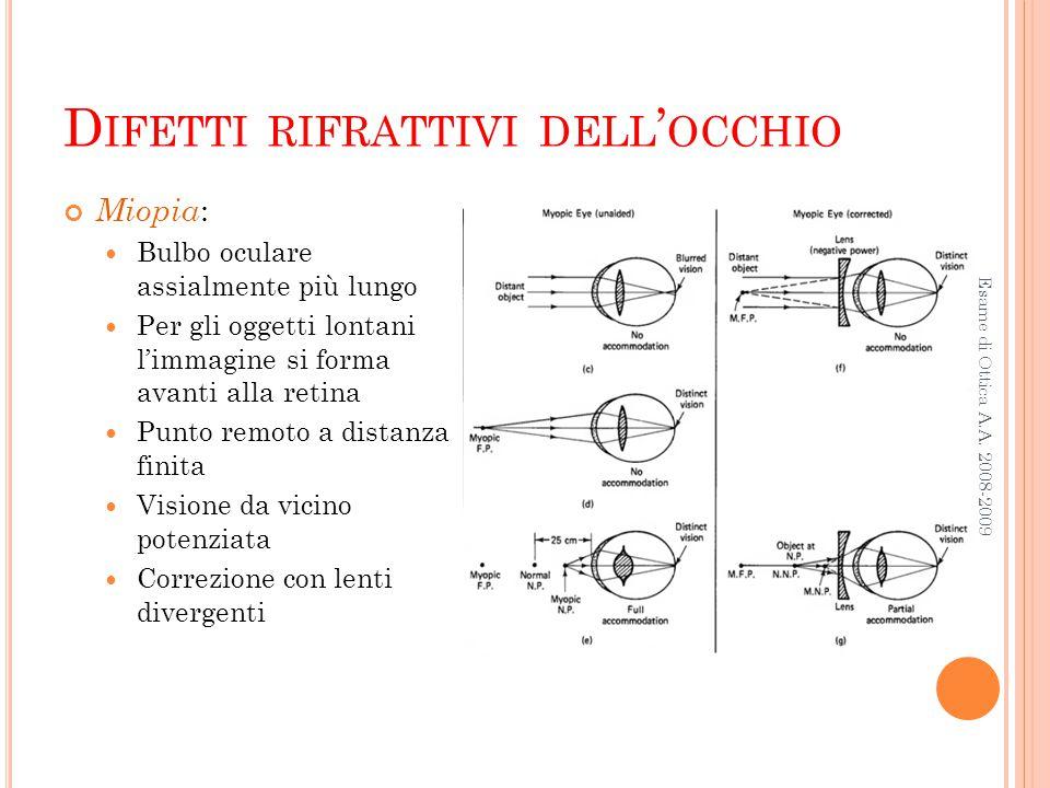 D IFETTI RIFRATTIVI DELL ' OCCHIO Esame di Ottica A.A. 2008-2009 Miopia : Bulbo oculare assialmente più lungo Per gli oggetti lontani l'immagine si fo