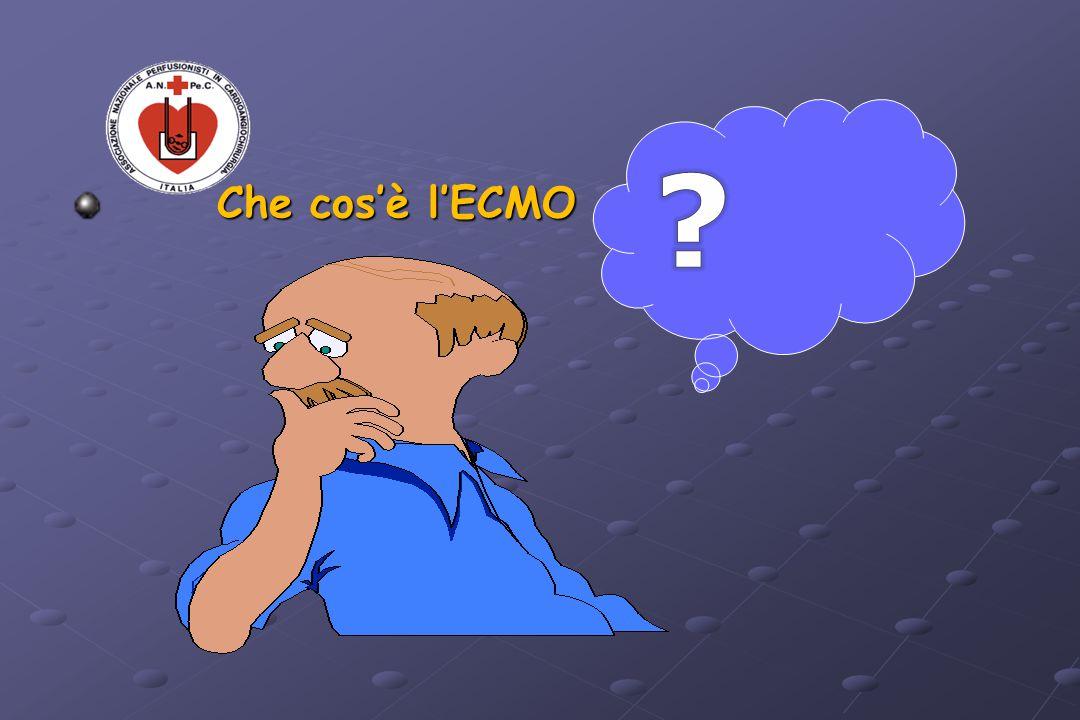Che cos'è l'ECMO Che cos'è l'ECMO