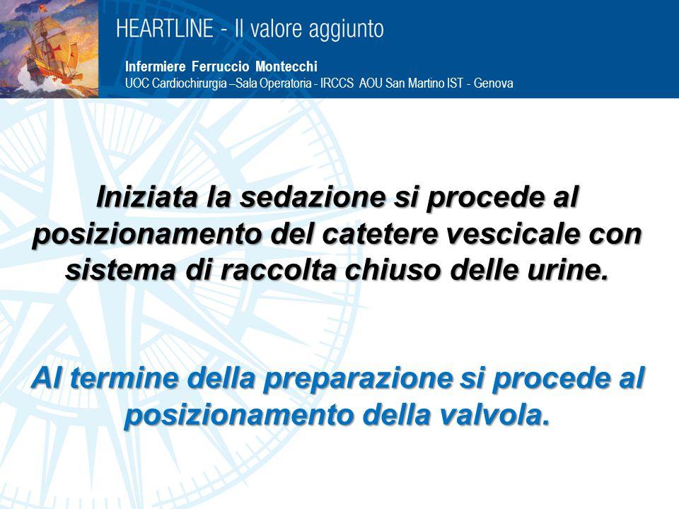 Infermiere Ferruccio Montecchi UOC Cardiochirurgia –Sala Operatoria - IRCCS AOU San Martino IST - Genova Iniziata la sedazione si procede al posizionamento del catetere vescicale con sistema di raccolta chiuso delle urine.