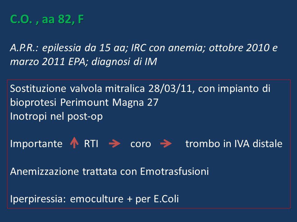 C.O., aa 82, F C.O., aa 82, F A.P.R.: epilessia da 15 aa; IRC con anemia; ottobre 2010 e marzo 2011 EPA; diagnosi di IM Sostituzione valvola mitralica