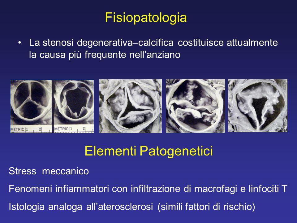 Fisiopatologia La stenosi degenerativa–calcifica costituisce attualmente la causa più frequente nell'anziano Elementi Patogenetici Stress meccanico Fe