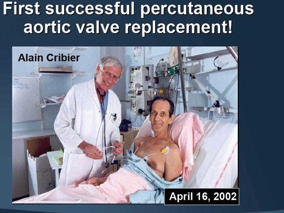 Caratteristiche di base 2 Anziano fragile %35 CAD %56 Pregresso CABG %25 LVET < 50%41 Malattia cerebrovascolare %18 Malattia vascolare periferica %21 COPD %21 Ipertensione polmonare % 30