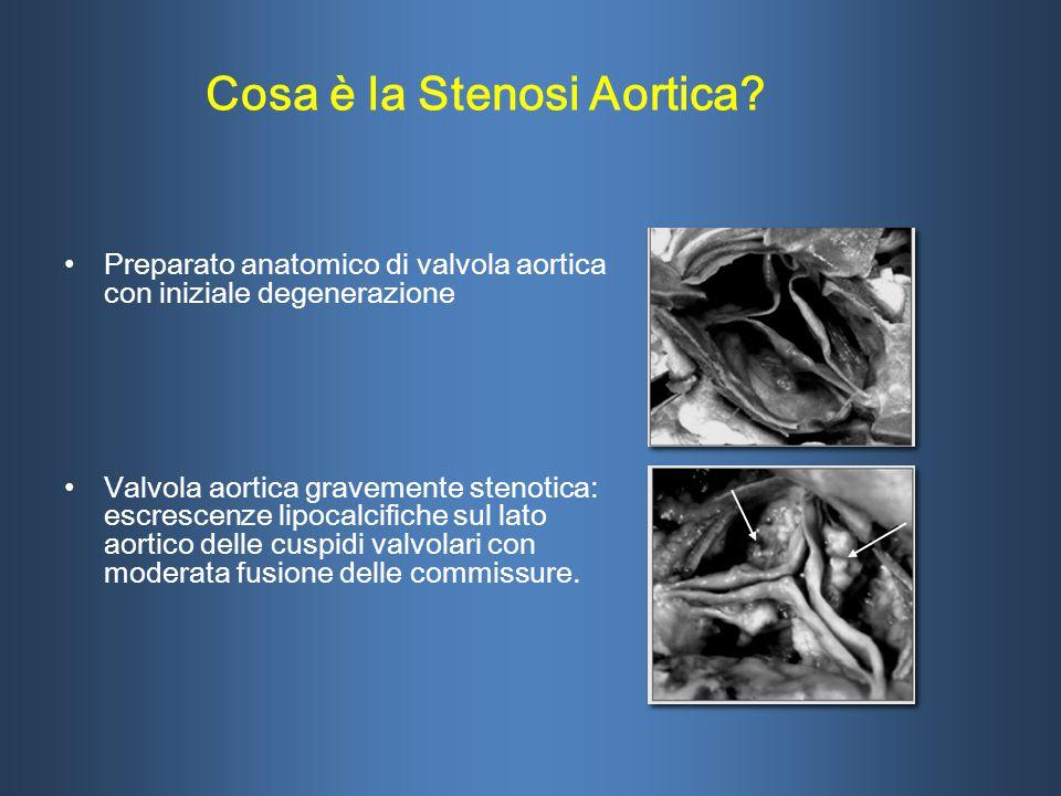 Preparato anatomico di valvola aortica con iniziale degenerazione Valvola aortica gravemente stenotica: escrescenze lipocalcifiche sul lato aortico de