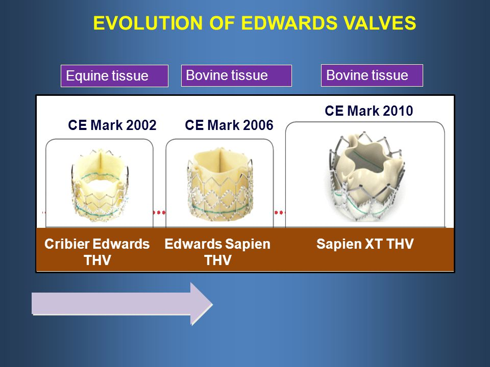 Cribier Edwards THV Edwards Sapien THV Sapien XT THV CE Mark 2002CE Mark 2006 CE Mark 2010 EVOLUTION OF EDWARDS VALVES Bovine tissue Equine tissue