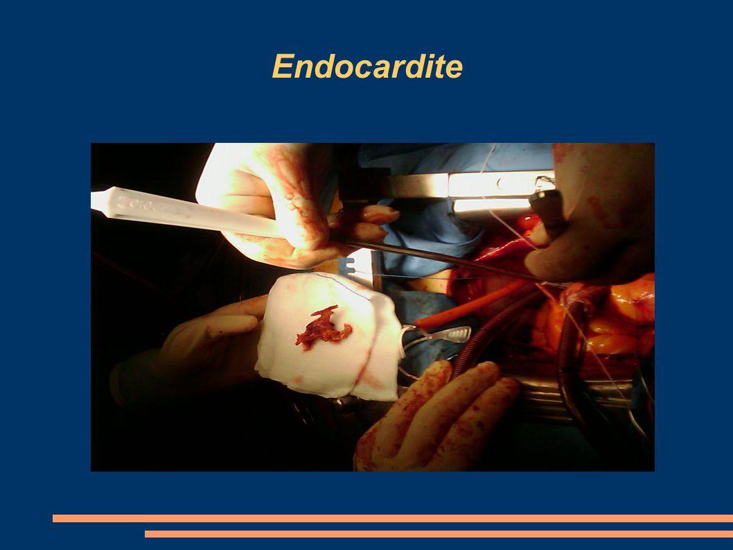 Endocardite