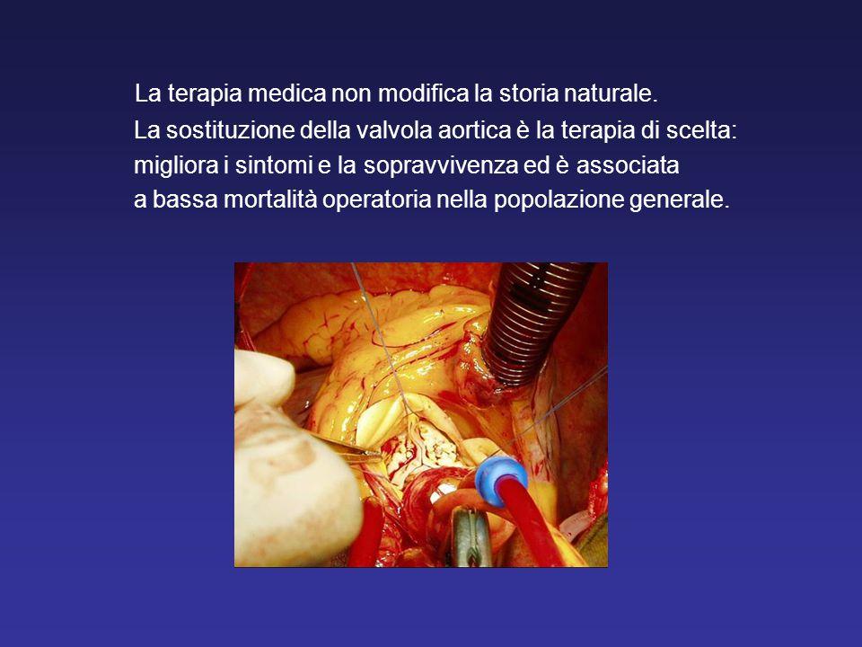 La terapia medica non modifica la storia naturale. La sostituzione della valvola aortica è la terapia di scelta: migliora i sintomi e la sopravvivenza