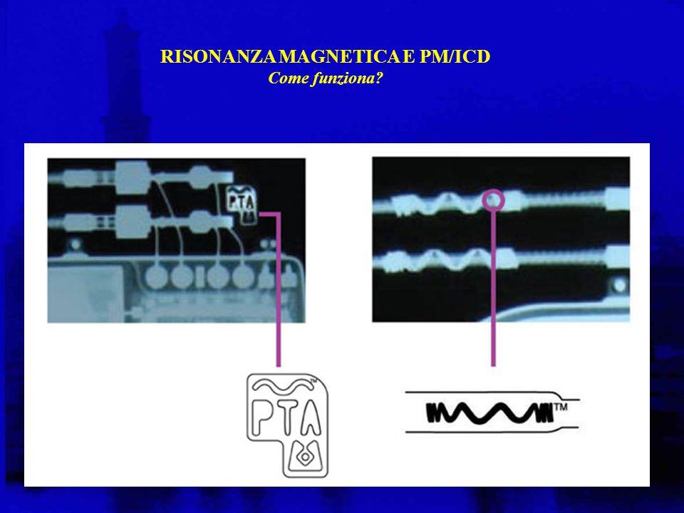 RISONANZA MAGNETICA E PM/ICD Come funziona?