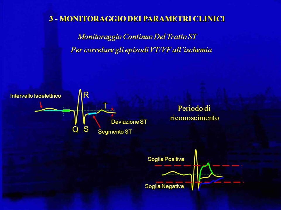 Per correlare gli episodi VT/VF all'ischemia Soglia Positiva Soglia Negativa Intervallo Isoelettrico Q R T Deviazione ST S Segmento ST 3 - MONITORAGGIO DEI PARAMETRI CLINICI Monitoraggio Continuo Del Tratto ST Periodo di riconoscimento