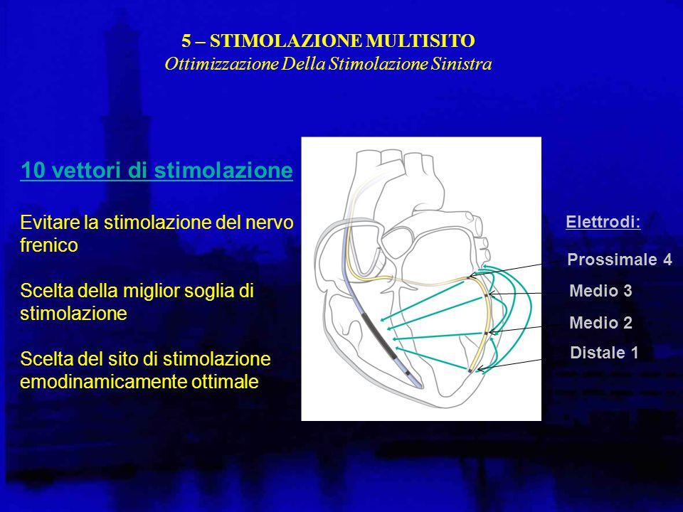 Elettrodi: Prossimale 4 Medio 3 Medio 2 Distale 1 10 vettori di stimolazione Evitare la stimolazione del nervo frenico Scelta della miglior soglia di stimolazione Scelta del sito di stimolazione emodinamicamente ottimale 5 – STIMOLAZIONE MULTISITO Ottimizzazione Della Stimolazione Sinistra