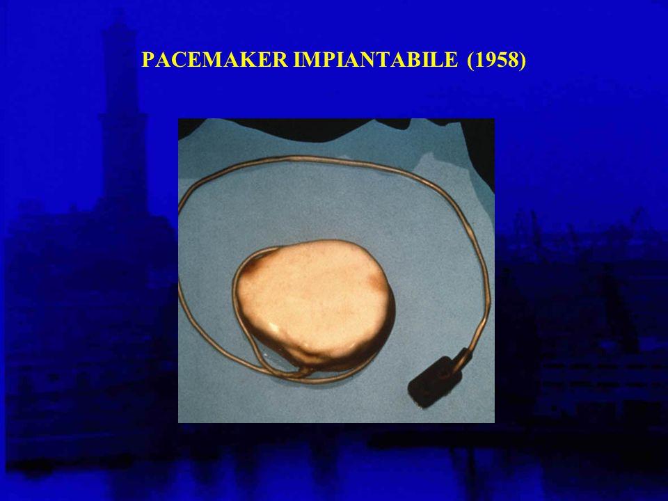 PACEMAKER IMPIANTABILE (1958)