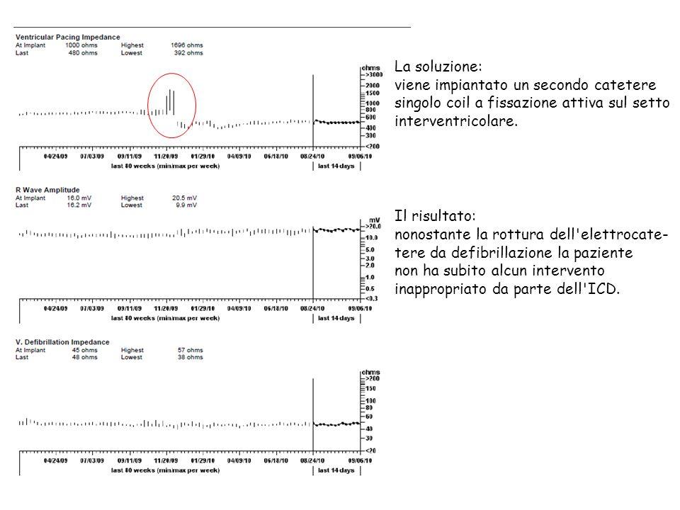La soluzione: viene impiantato un secondo catetere singolo coil a fissazione attiva sul setto interventricolare. Il risultato: nonostante la rottura d