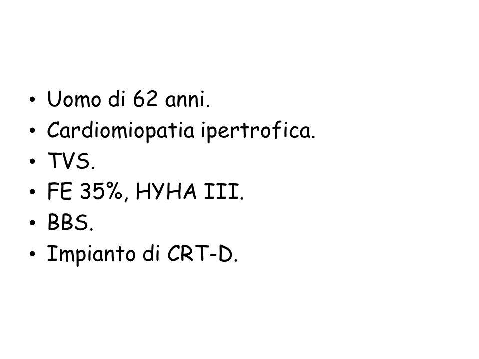 Uomo di 62 anni. Cardiomiopatia ipertrofica. TVS. FE 35%, HYHA III. BBS. Impianto di CRT-D.