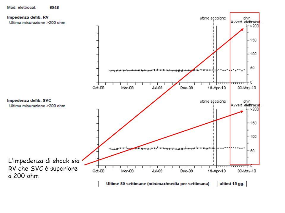 L'impedenza di shock sia RV che SVC è superiore a 200 ohm