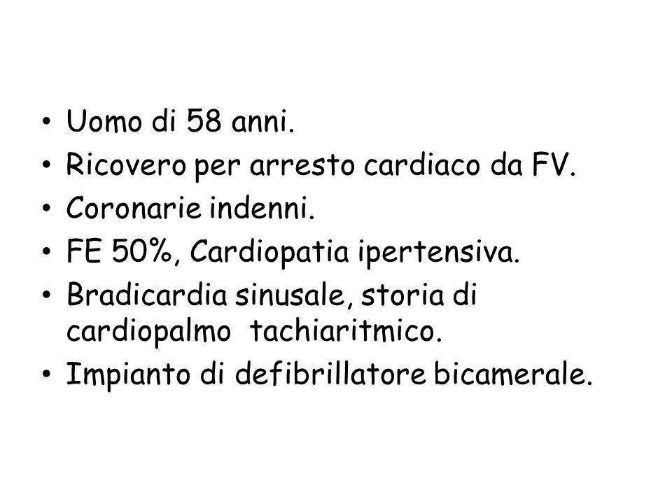 Uomo di 58 anni. Ricovero per arresto cardiaco da FV. Coronarie indenni. FE 50%, Cardiopatia ipertensiva. Bradicardia sinusale, storia di cardiopalmo