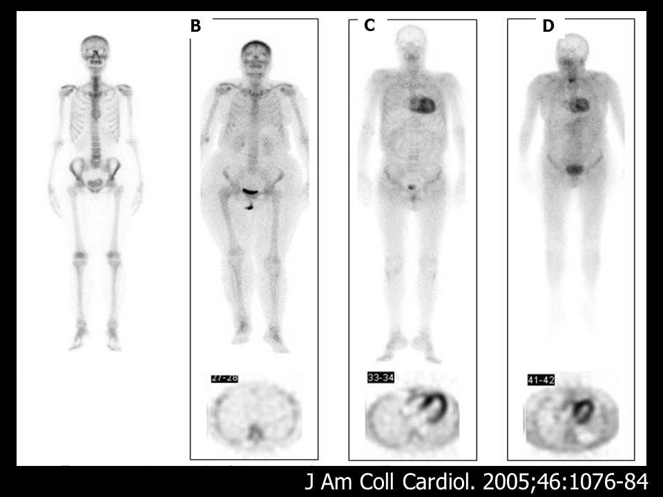 LV RV RA LA IVS Pattern of myocardial uptake of 99mTc-DPD J Am Coll Cardiol 2005;46:1076-84