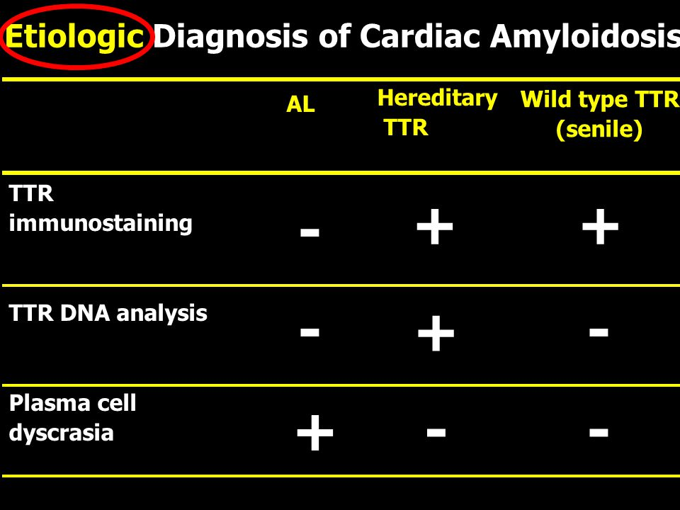 TTR immunostaining TTR DNA analysis Plasma cell dyscrasia AL Hereditary TTR Wild type TTR (senile) - -- -+ + - ++ Etiologic Diagnosis of Cardiac Amylo